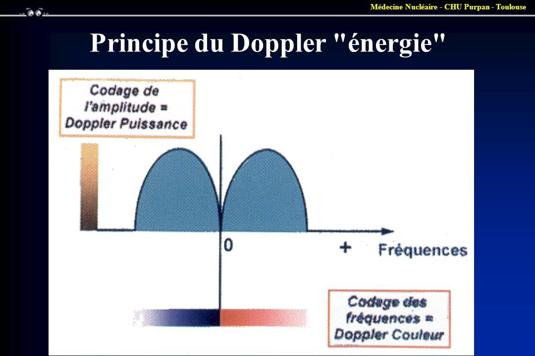 Médecine Nucléaire - CHU Purpan - Toulouse Principe du Doppler