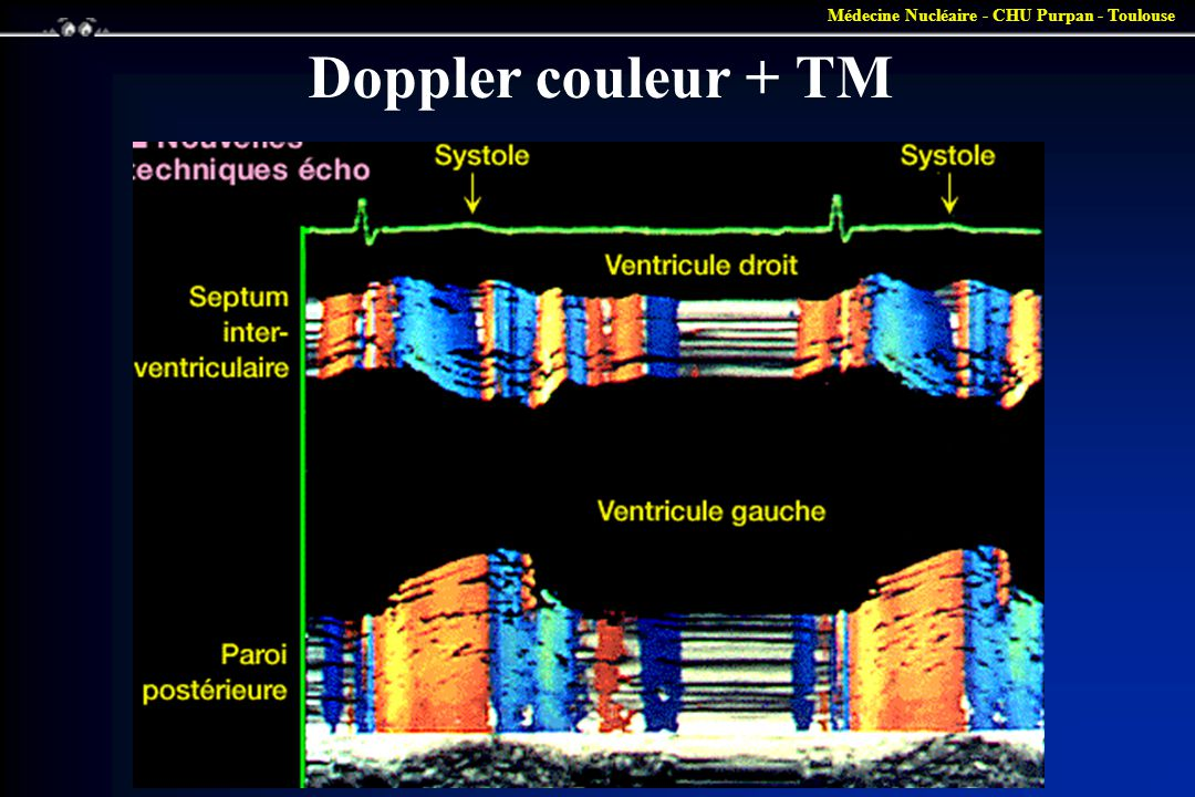Médecine Nucléaire - CHU Purpan - Toulouse Doppler couleur + TM