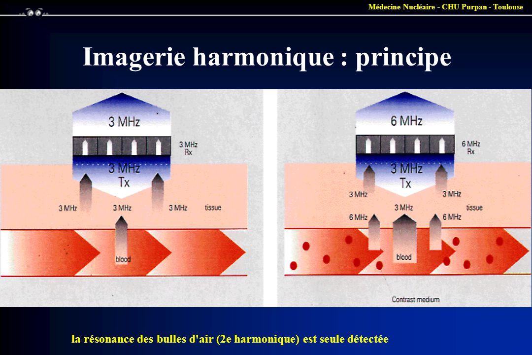 Médecine Nucléaire - CHU Purpan - Toulouse Imagerie harmonique : principe la résonance des bulles d'air (2e harmonique) est seule détectée