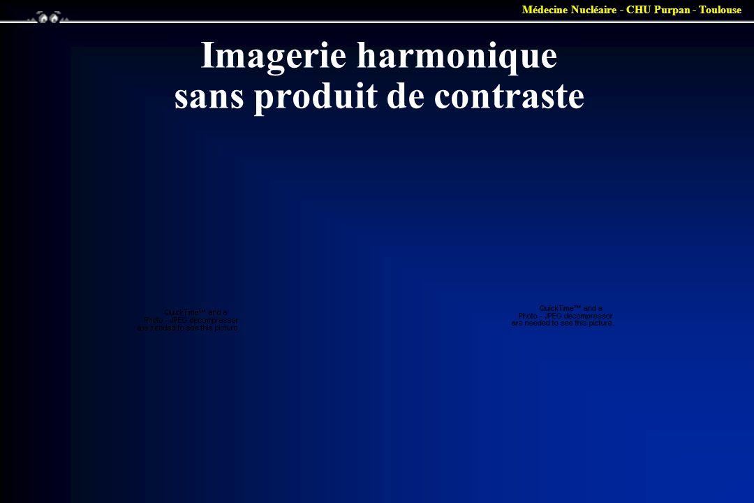 Imagerie harmonique sans produit de contraste