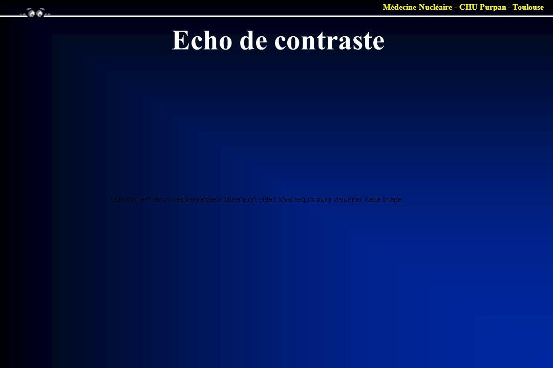 Médecine Nucléaire - CHU Purpan - Toulouse Echo de contraste