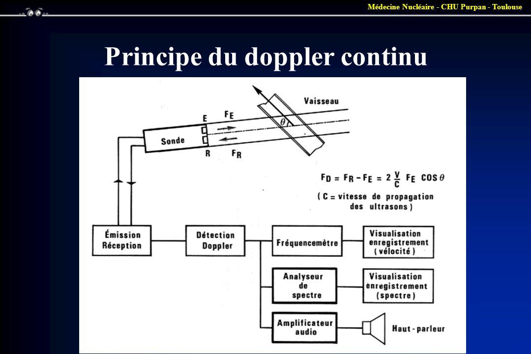Médecine Nucléaire - CHU Purpan - Toulouse Doppler continu •Un circuit analyse Fd fait la soustraction Fr - Fe et le répercute dans un haut parleur.