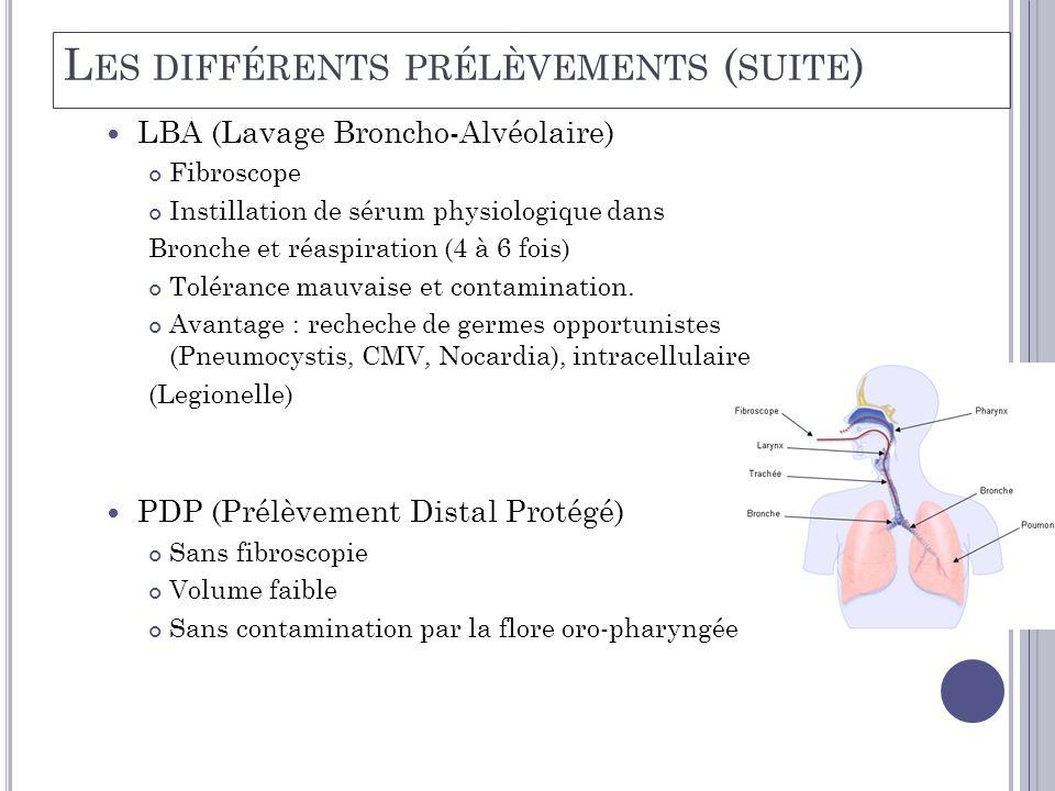  LBA (Lavage Broncho-Alvéolaire) Fibroscope Instillation de sérum physiologique dans Bronche et réaspiration (4 à 6 fois) Tolérance mauvaise et contamination.