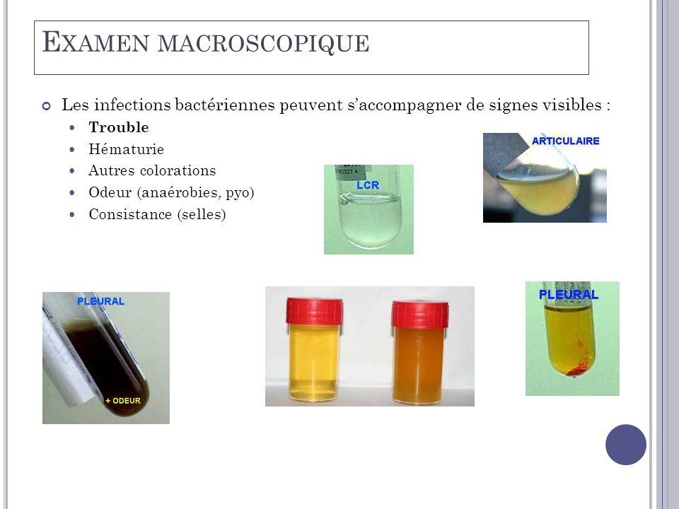 E XAMEN MACROSCOPIQUE Les infections bactériennes peuvent s'accompagner de signes visibles :  Trouble  Hématurie  Autres colorations  Odeur (anaérobies, pyo)  Consistance (selles)