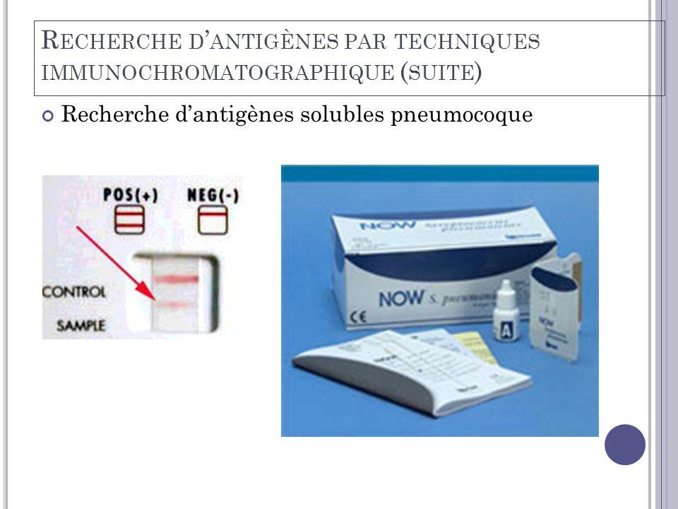 Recherche d'antigènes solubles pneumocoque R ECHERCHE D ' ANTIGÈNES PAR TECHNIQUES IMMUNOCHROMATOGRAPHIQUE ( SUITE )