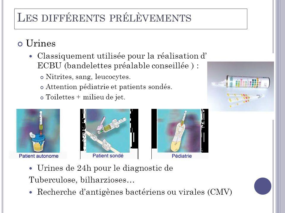 L ES DIFFÉRENTS PRÉLÈVEMENTS Urines  Classiquement utilisée pour la réalisation d'un ECBU (bandelettes préalable conseillée ) : Nitrites, sang, leuco