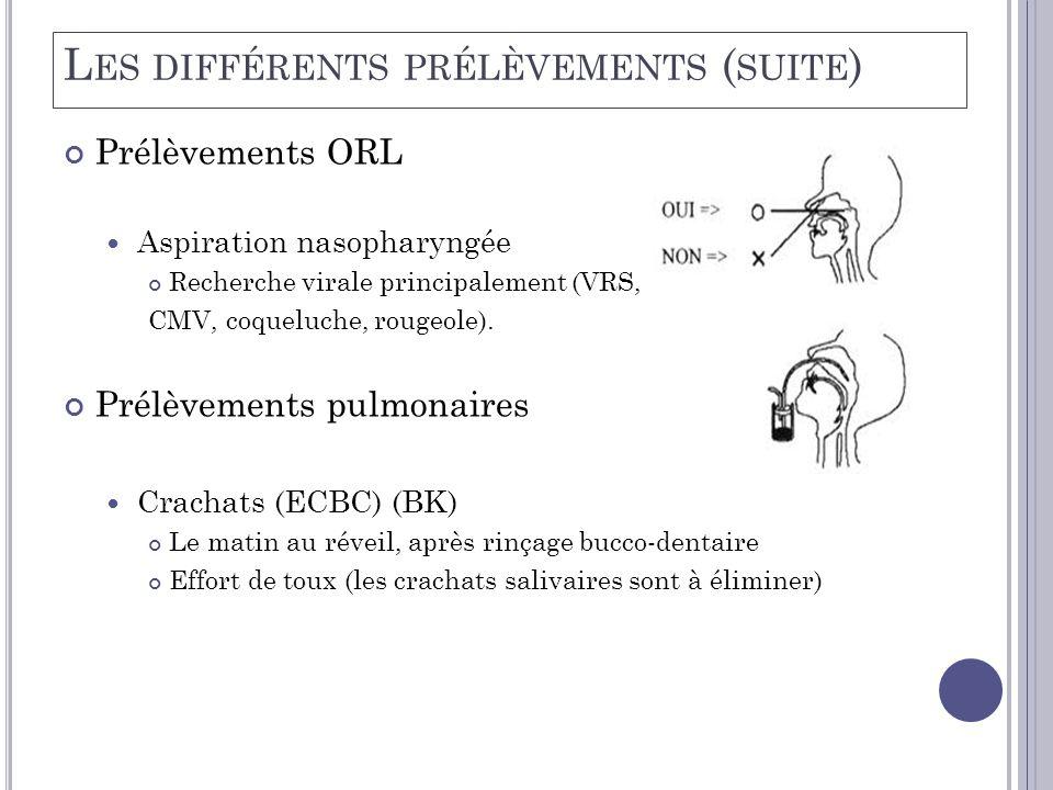 Prélèvements ORL  Aspiration nasopharyngée Recherche virale principalement (VRS, CMV, coqueluche, rougeole). Prélèvements pulmonaires  Crachats (ECB