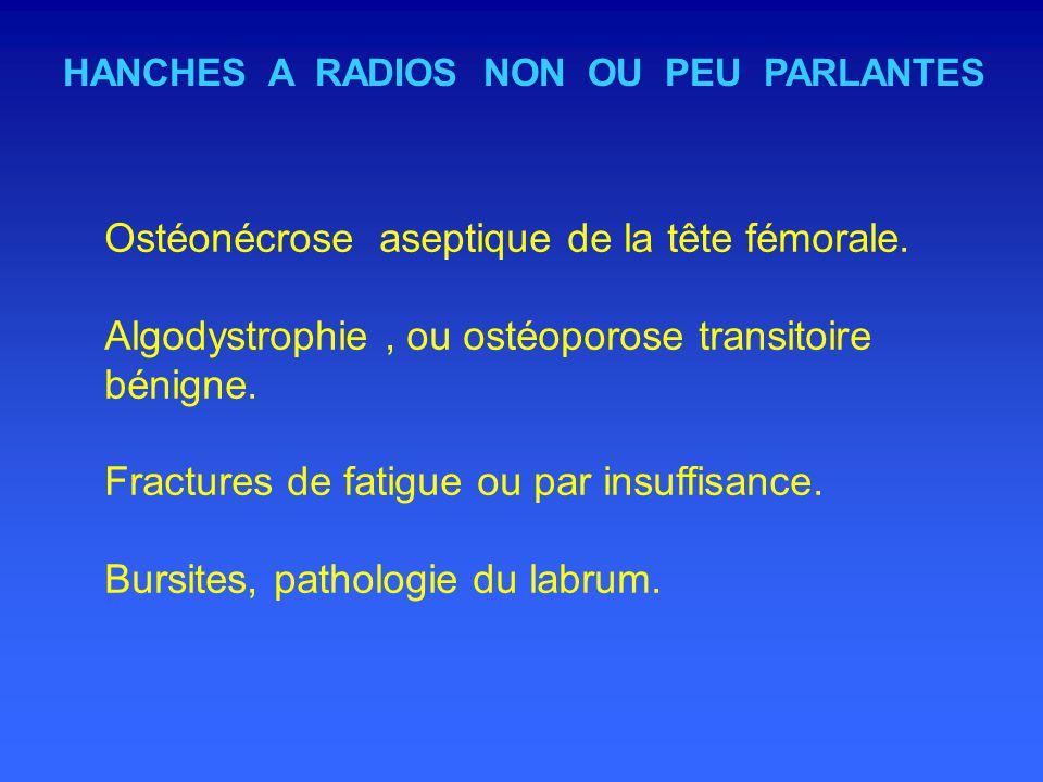 HANCHES A RADIOS NON OU PEU PARLANTES Ostéonécrose aseptique de la tête fémorale.