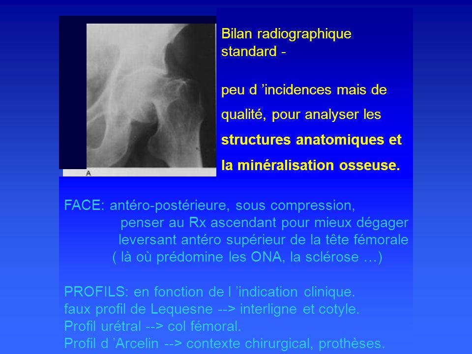Bilan radiographique standard - peu d 'incidences mais de qualité, pour analyser les structures anatomiques et la minéralisation osseuse.