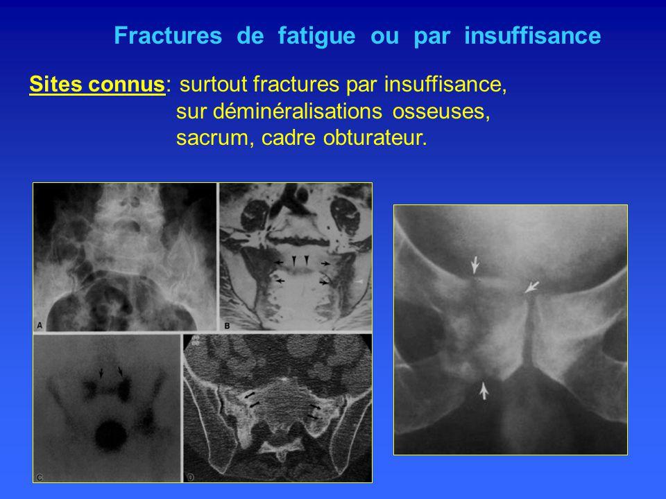 Fractures de fatigue ou par insuffisance Sites connus: surtout fractures par insuffisance, sur déminéralisations osseuses, sacrum, cadre obturateur.