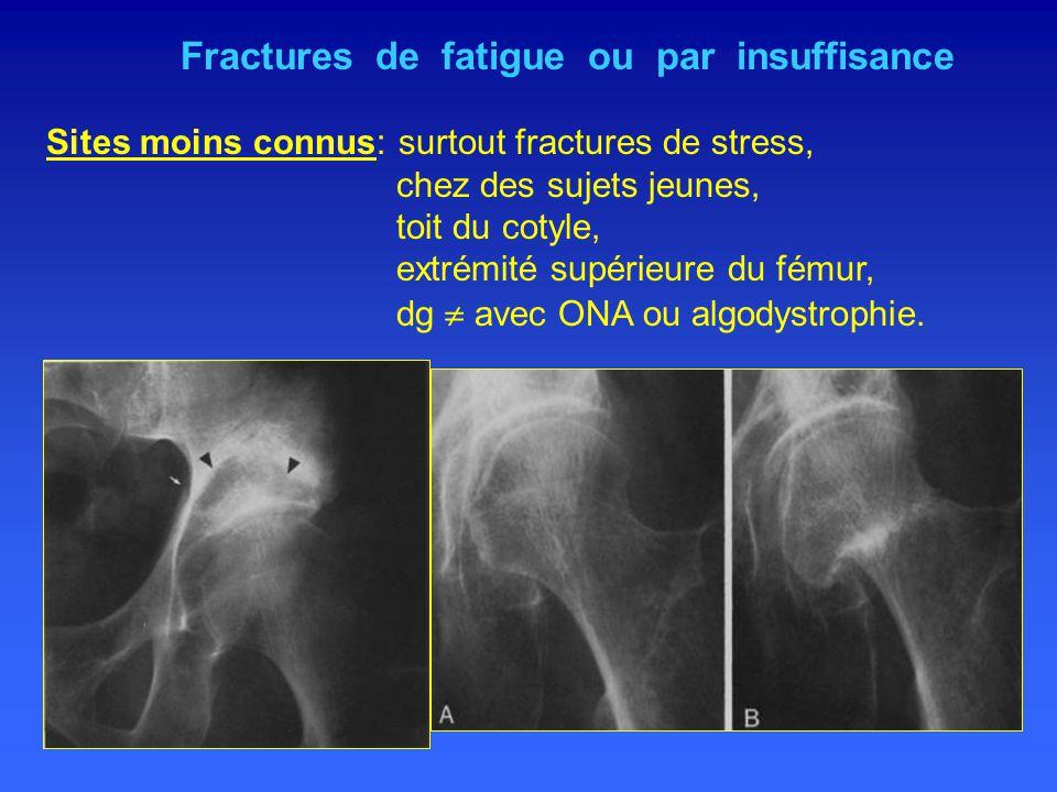 Fractures de fatigue ou par insuffisance Sites moins connus: surtout fractures de stress, chez des sujets jeunes, toit du cotyle, extrémité supérieure du fémur, dg  avec ONA ou algodystrophie.