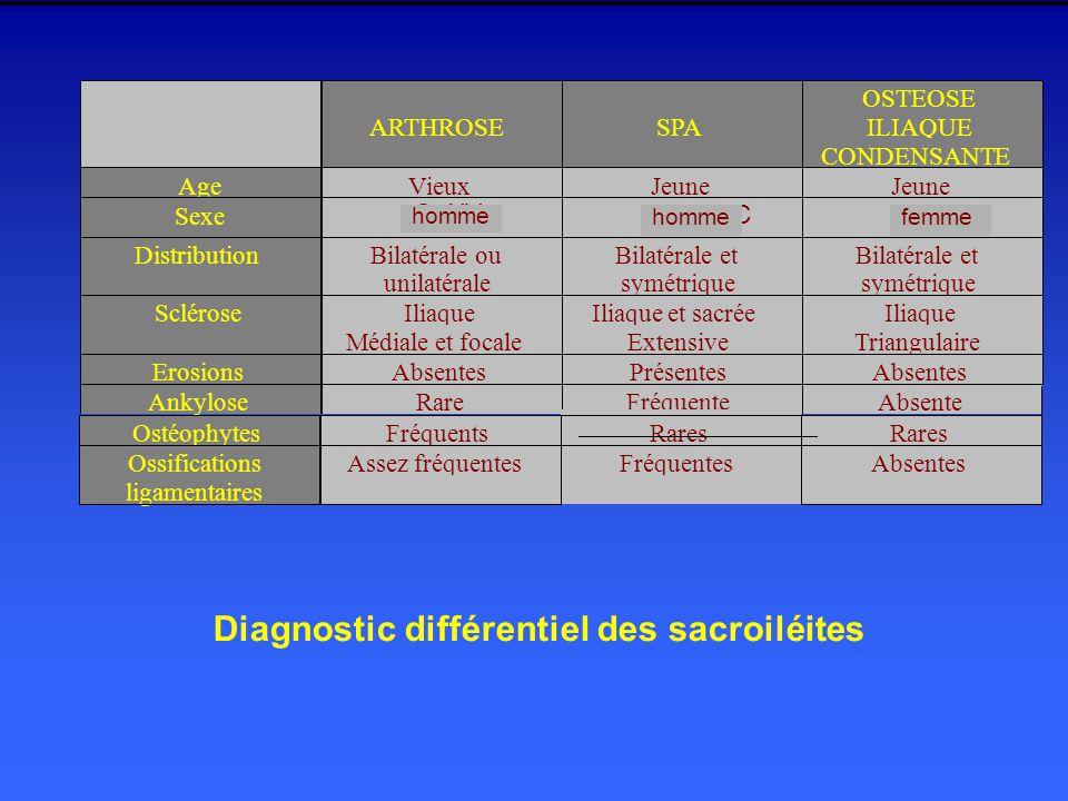 OstéophytesFréquentsRares Ossifications ligamentaires Assez fréquentesFréquentesAbsentes Diagnostic différentiel des sacroiléites homme femmehomme