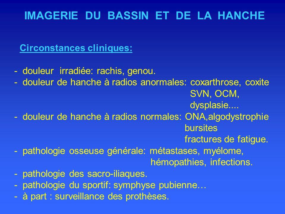 IMAGERIE DU BASSIN ET DE LA HANCHE Circonstances cliniques: - douleur irradiée: rachis, genou.