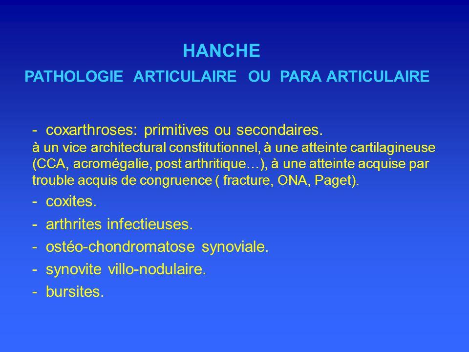 SURVEILLANCE DES PROTHESES DE HANCHE - différents types.