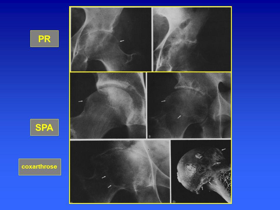 algodystrophie Intérêt de l 'IRM