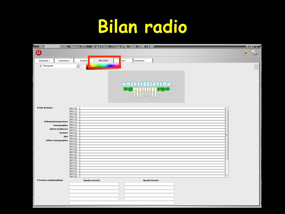 Bilan radio