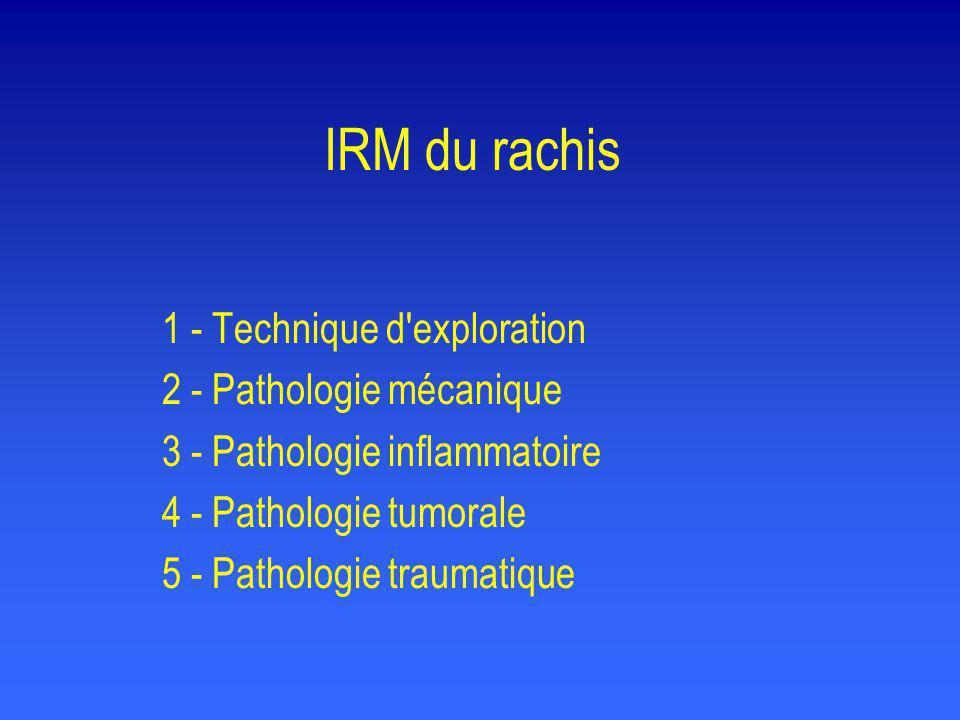 Pathologie traumatique (lésions liagmentaires) • En urgence, l IRM permet de voir les lésions ligamentaires chez 53 % des patients ayant un trauma thoraco-lombaire : LVCP, LVCA, LJ, LIE (AJR, 1997, 168:1481-1486) •L IRM pourrait remplacer le scanner dans les fractures comminutives en permettant de mieux préciser la voie d abord en fonction des dégâts ligamentaires (Skeletal Radiol.