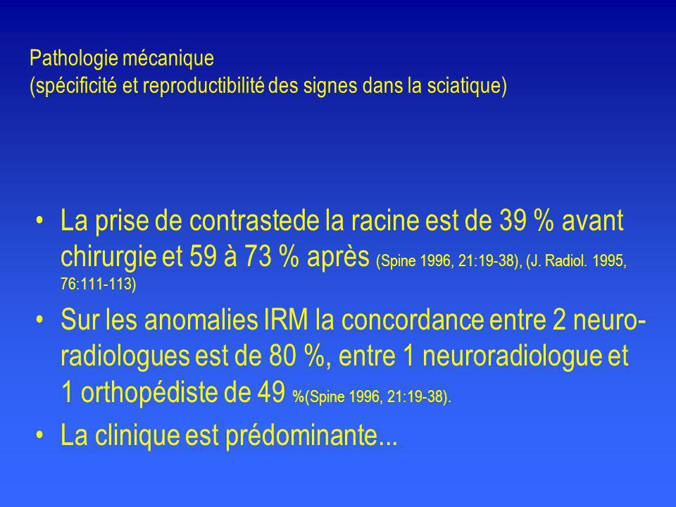 Pathologie mécanique (spécificité et reproductibilité des signes dans la sciatique) •La prise de contrastede la racine est de 39 % avant chirurgie et