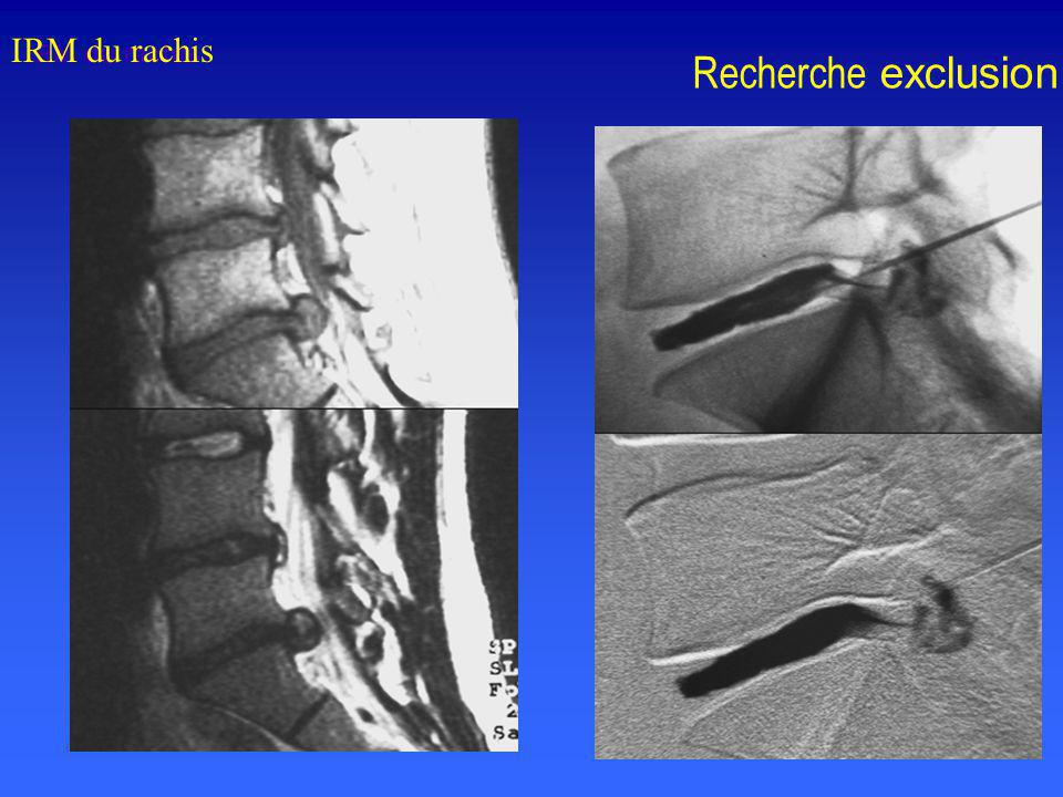 IRM du rachis Recherche exclusion IRM du rachis