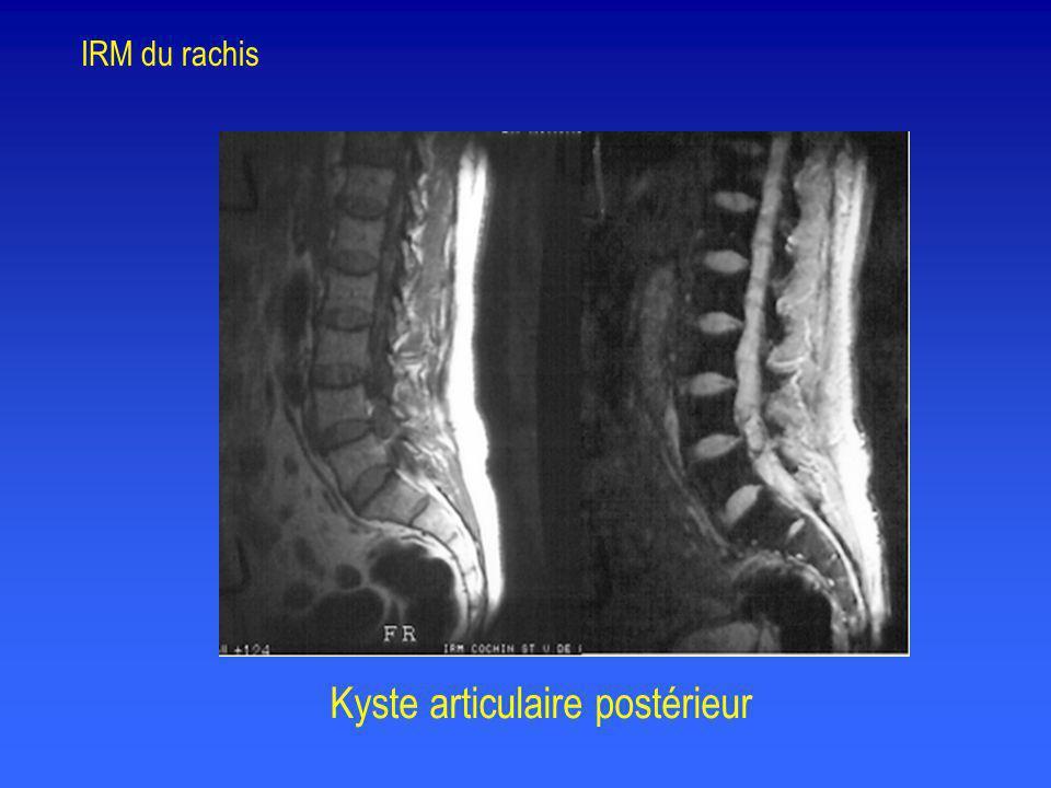 Kyste articulaire postérieur IRM du rachis