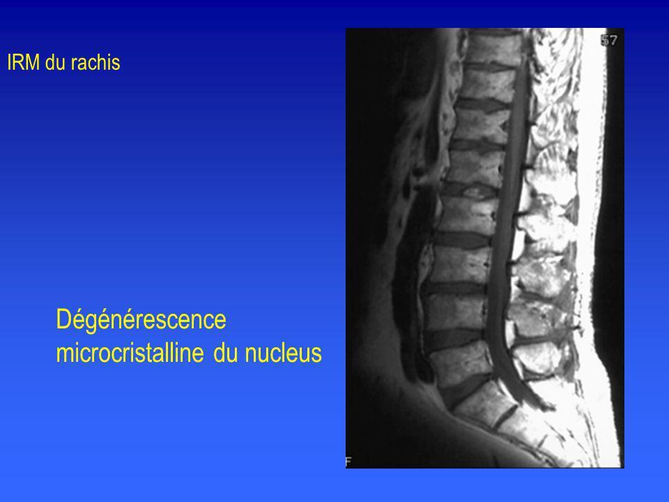 Dégénérescence microcristalline du nucleus IRM du rachis