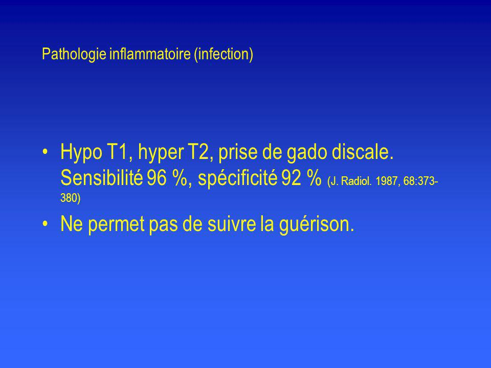 Pathologie inflammatoire (infection) •Hypo T1, hyper T2, prise de gado discale. Sensibilité 96 %, spécificité 92 % (J. Radiol. 1987, 68:373- 380) •Ne