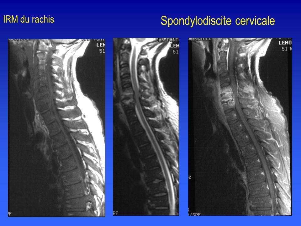 Spondylodiscite cervicale IRM du rachis