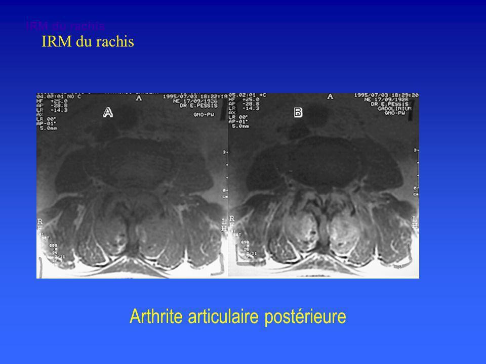 Arthrite articulaire postérieure IRM du rachis