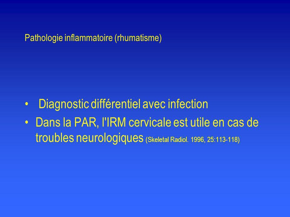 Pathologie inflammatoire (rhumatisme) • Diagnostic différentiel avec infection •Dans la PAR, l'IRM cervicale est utile en cas de troubles neurologique