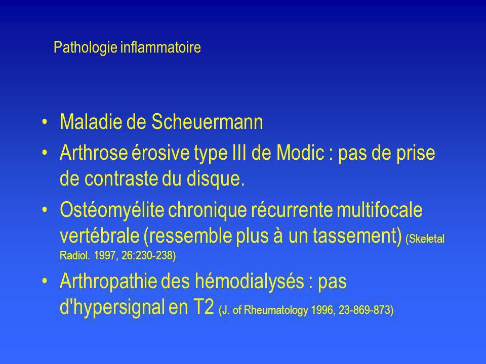 Pathologie inflammatoire •Maladie de Scheuermann •Arthrose érosive type III de Modic : pas de prise de contraste du disque. •Ostéomyélite chronique ré