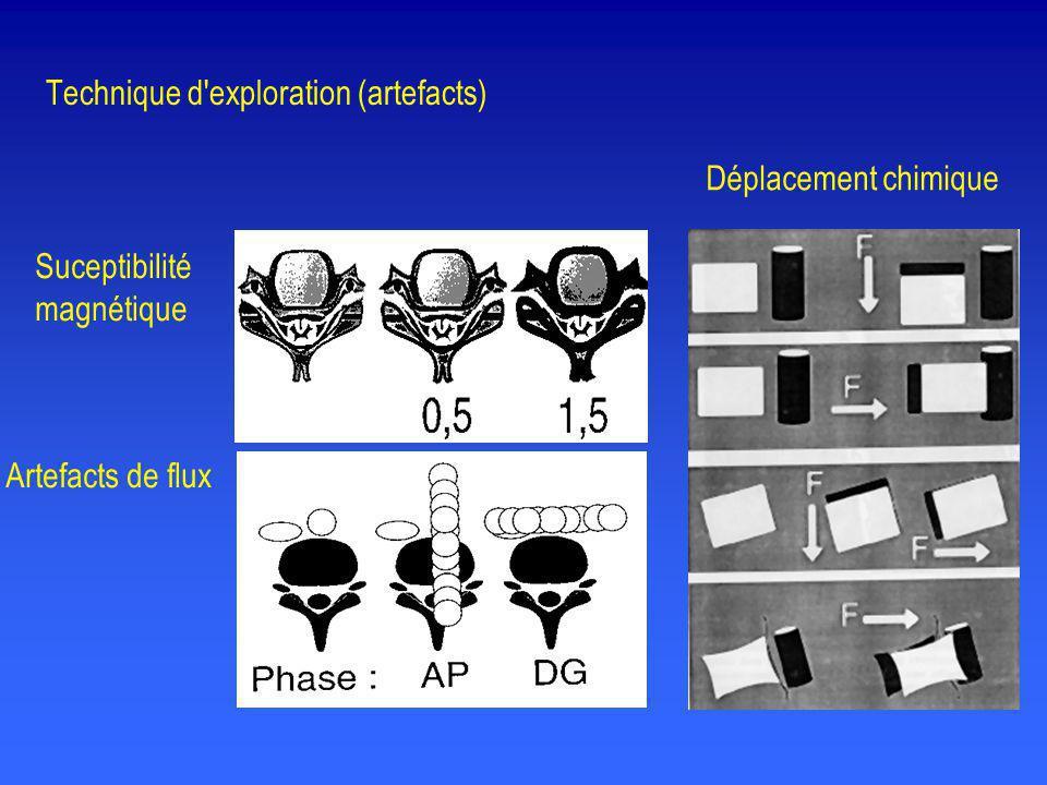 Suceptibilité magnétique Déplacement chimique Artefacts de flux Technique d'exploration (artefacts)