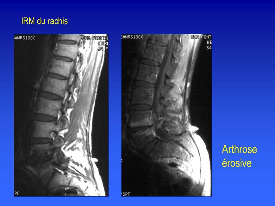 Arthrose érosive IRM du rachis