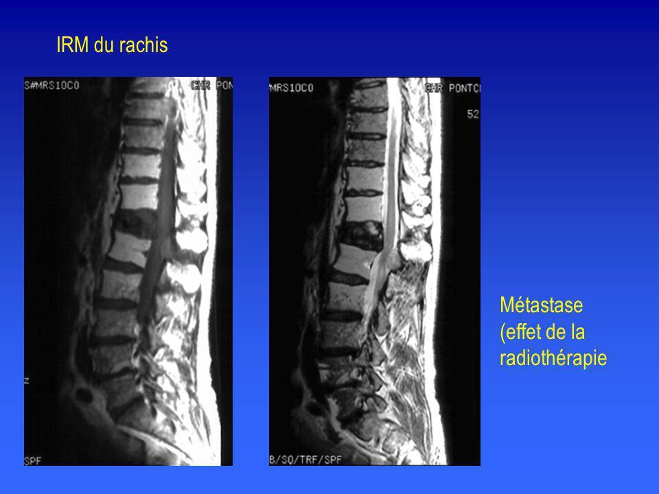 Métastase (effet de la radiothérapie IRM du rachis