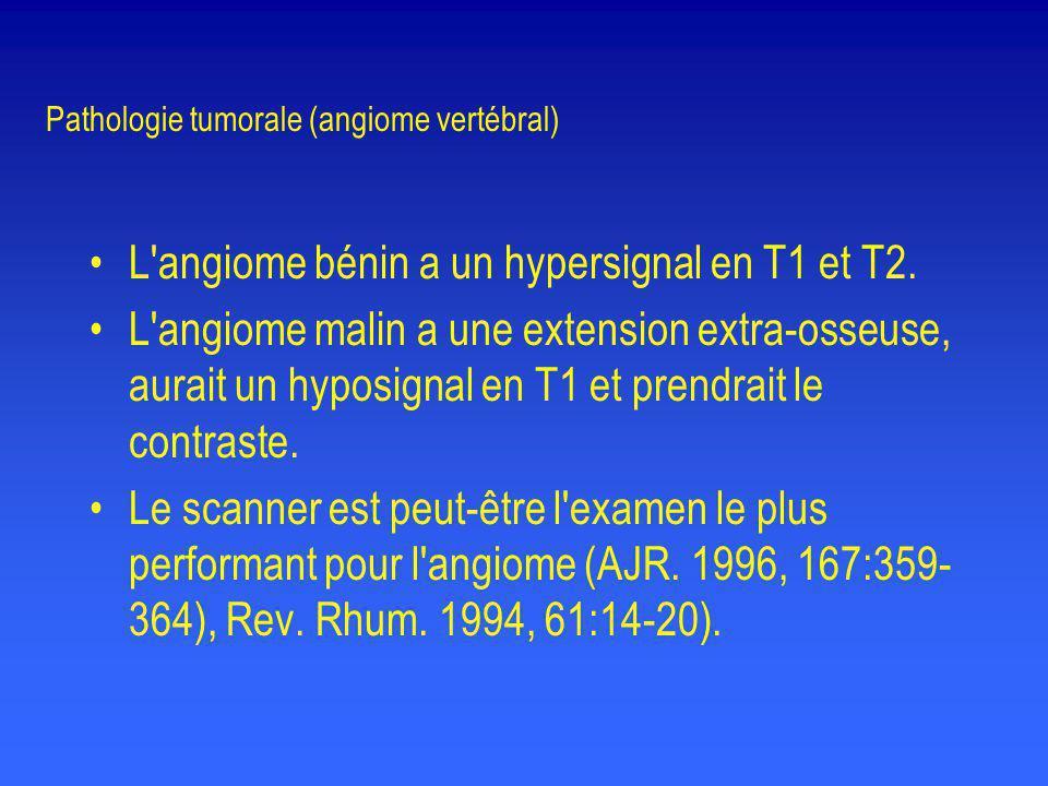 Pathologie tumorale (angiome vertébral) •L'angiome bénin a un hypersignal en T1 et T2. •L'angiome malin a une extension extra-osseuse, aurait un hypos