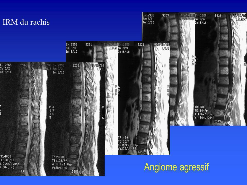 Angiome agressif IRM du rachis