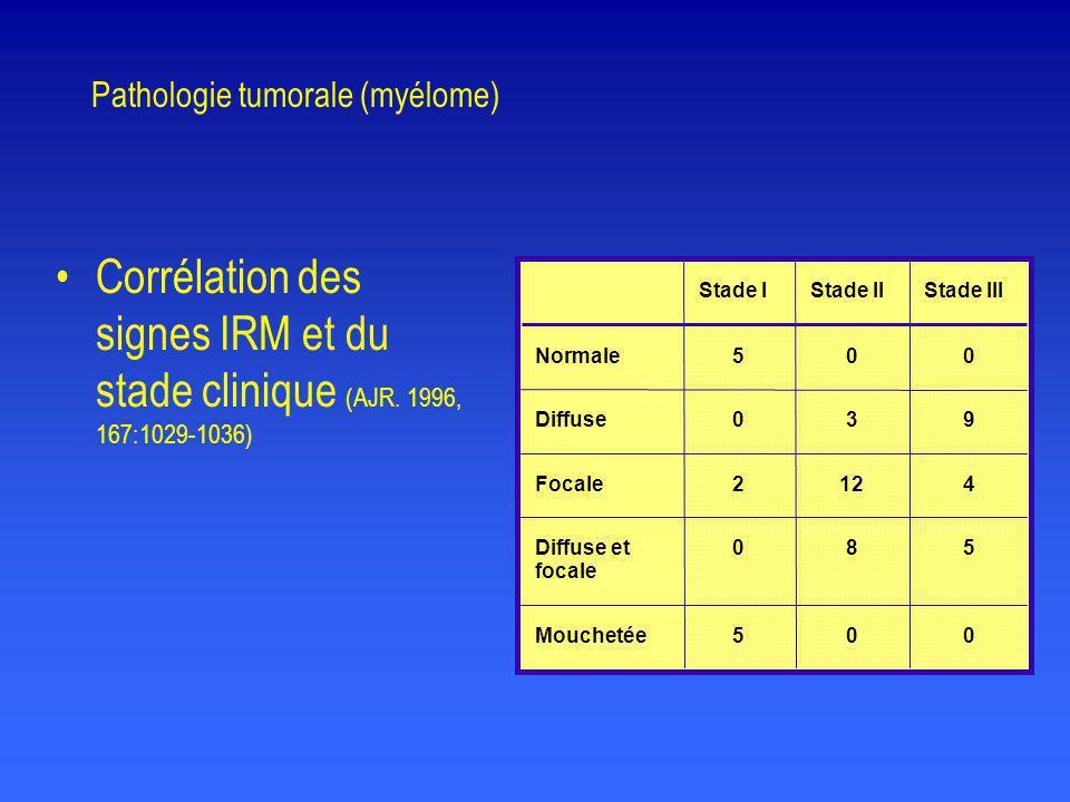 Normale Diffuse Focale Diffuse et focale Mouchetée Stade IStade IIStade III 5 0 2 0 5 0 3 12 8 0 0 9 4 5 0 Pathologie tumorale (myélome) •Corrélation