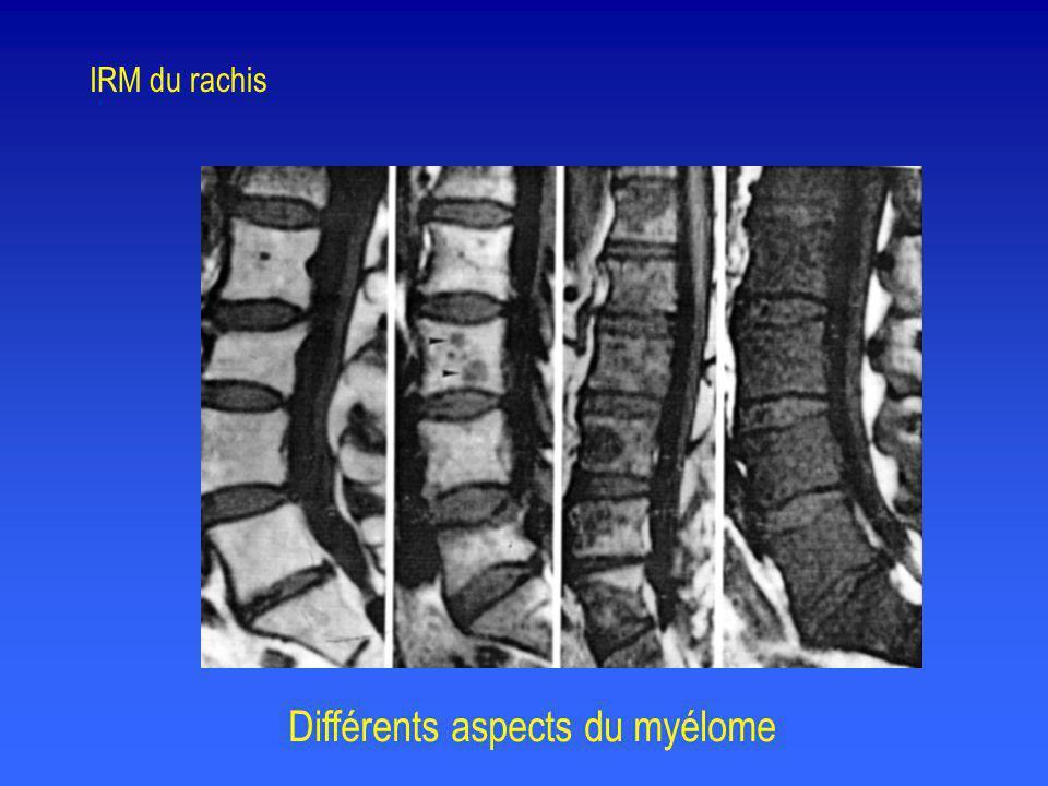 Différents aspects du myélome IRM du rachis