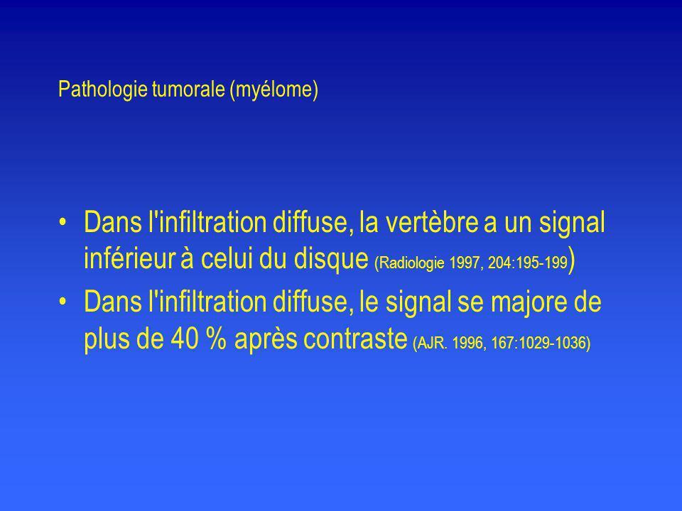 Pathologie tumorale (myélome) •Dans l'infiltration diffuse, la vertèbre a un signal inférieur à celui du disque (Radiologie 1997, 204:195-199 ) •Dans