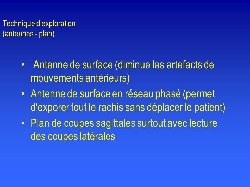 Technique d'exploration (antennes - plan) • Antenne de surface (diminue les artefacts de mouvements antérieurs) •Antenne de surface en réseau phasé (p