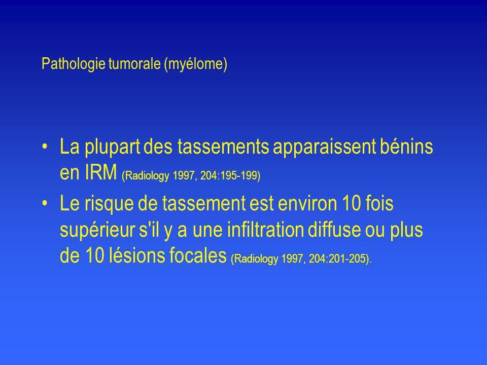 Pathologie tumorale (myélome) •La plupart des tassements apparaissent bénins en IRM (Radiology 1997, 204:195-199) •Le risque de tassement est environ
