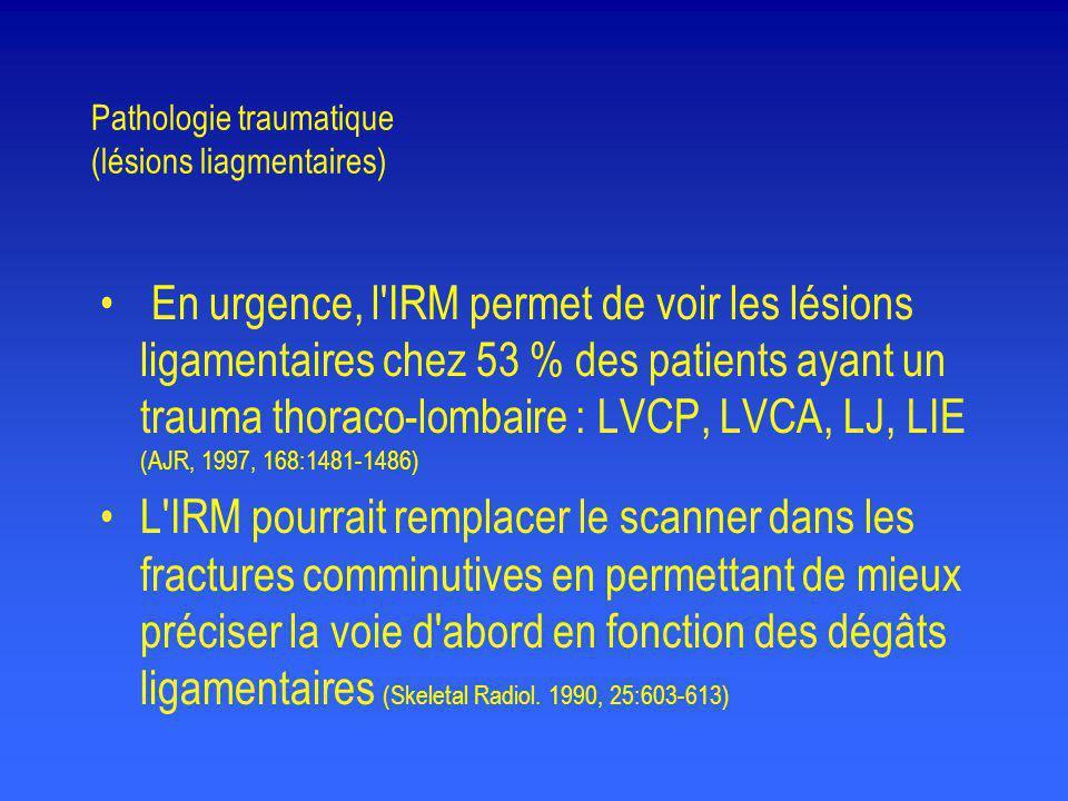 Pathologie traumatique (lésions liagmentaires) • En urgence, l'IRM permet de voir les lésions ligamentaires chez 53 % des patients ayant un trauma tho