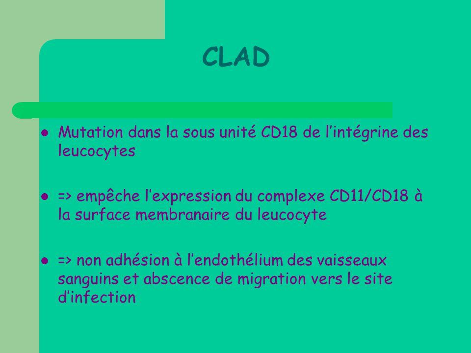 CLAD  Mutation dans la sous unité CD18 de l'intégrine des leucocytes  => empêche l'expression du complexe CD11/CD18 à la surface membranaire du leuc