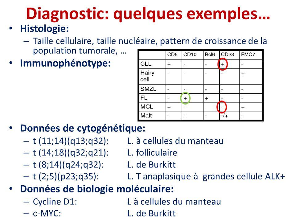 Diagnostic: quelques exemples… • Histologie: – Taille cellulaire, taille nucléaire, pattern de croissance de la population tumorale, … • Immunophénoty