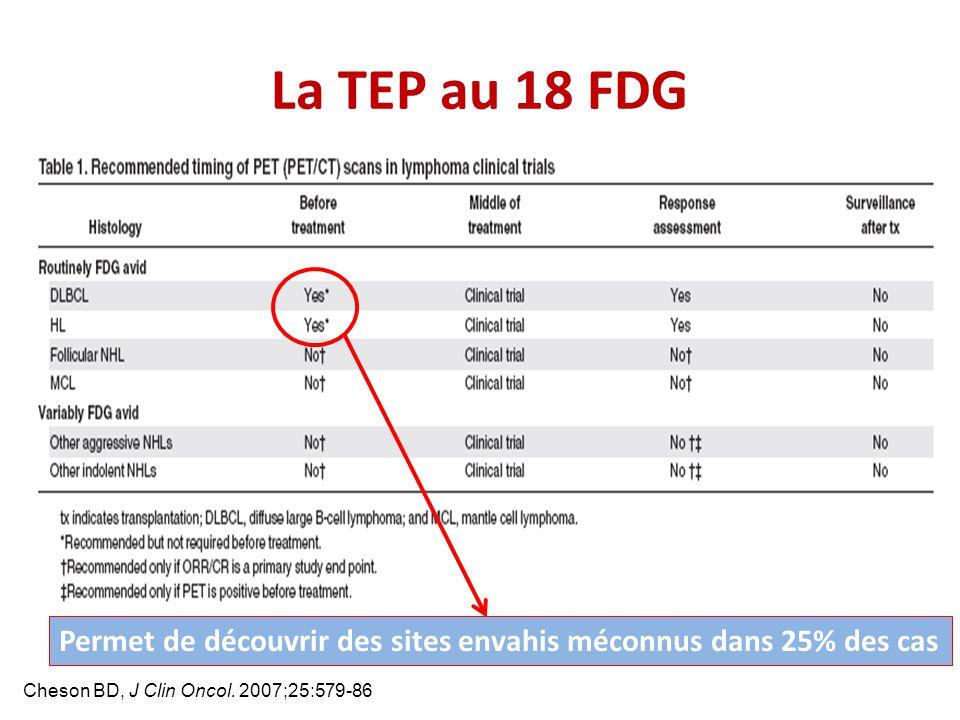 Cheson BD, J Clin Oncol. 2007;25:579-86 La TEP au 18 FDG Permet de découvrir des sites envahis méconnus dans 25% des cas