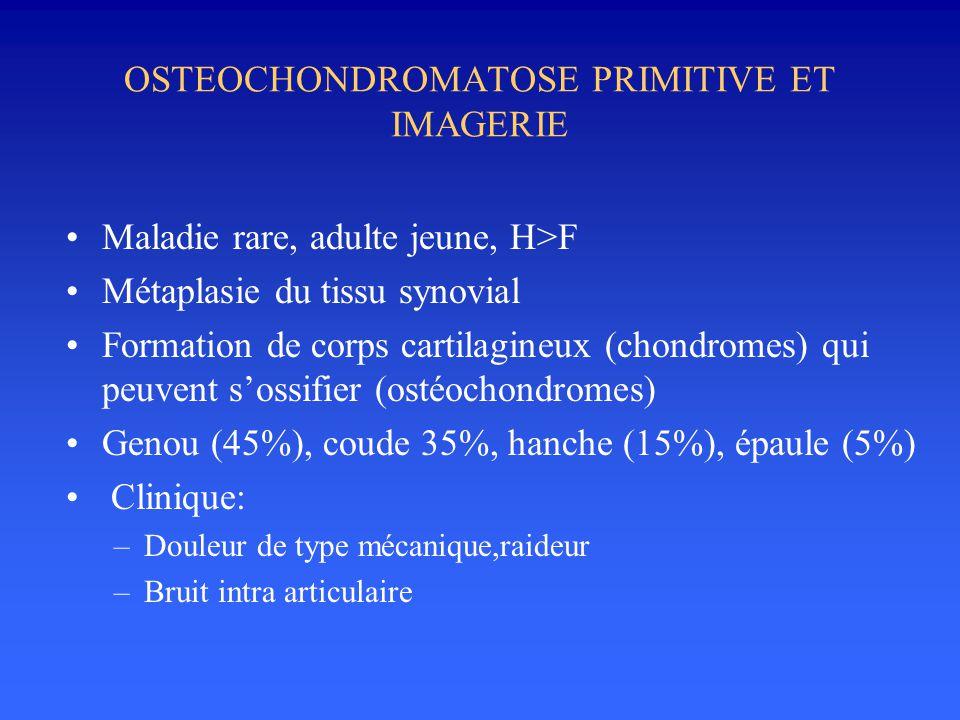 OSTEOCHONDROMATOSE PRIMITIVE ET IMAGERIE •Maladie rare, adulte jeune, H>F •Métaplasie du tissu synovial •Formation de corps cartilagineux (chondromes)