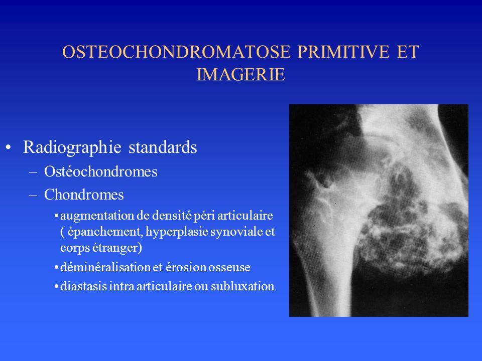 OSTEOCHONDROMATOSE PRIMITIVE ET IMAGERIE •Radiographie standards –Ostéochondromes –Chondromes •augmentation de densité péri articulaire ( épanchement,