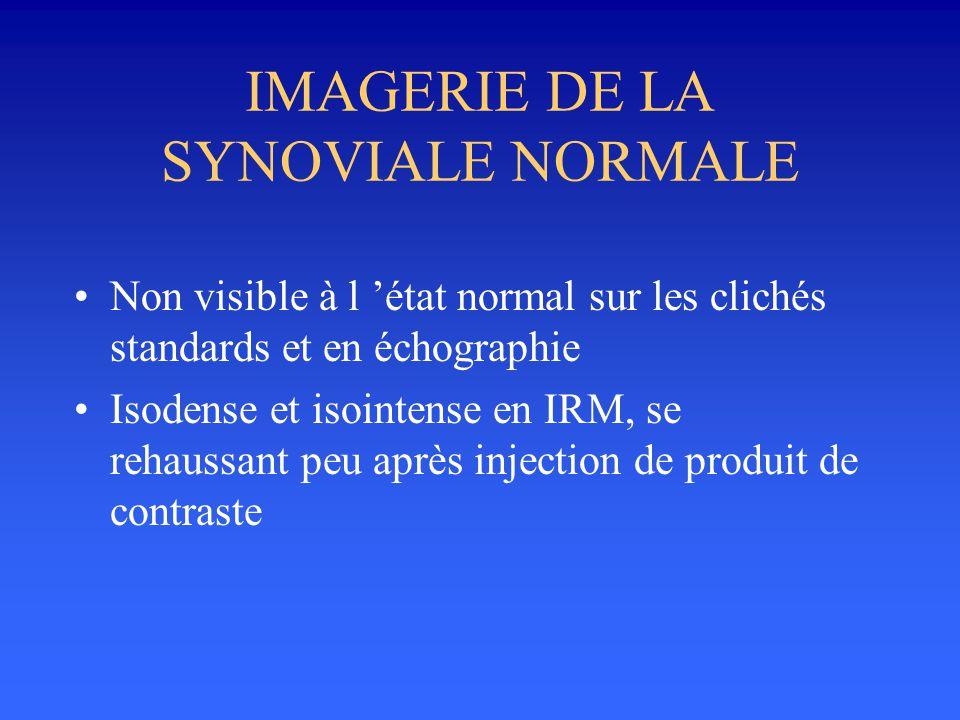 SYNOVIALE PATHOLOGOIQUE ET RADIOGRAPHIES STANDARDS •Signes directs –Calcifications (chondrocalcinose, goutte) –Ostéochondromes (Primaire ou secondaire) –Synoviale dense dans la surcharge en hémosidérine