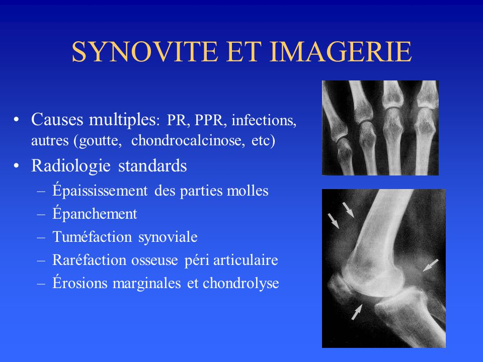 SYNOVITE ET IMAGERIE •Causes multiples : PR, PPR, infections, autres (goutte, chondrocalcinose, etc) •Radiologie standards –Épaississement des parties