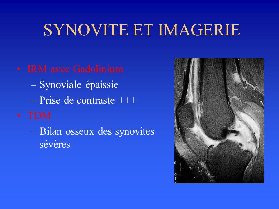 SYNOVITE ET IMAGERIE •IRM avec Gadolinium –Synoviale épaissie –Prise de contraste +++ •TDM –Bilan osseux des synovites sévères