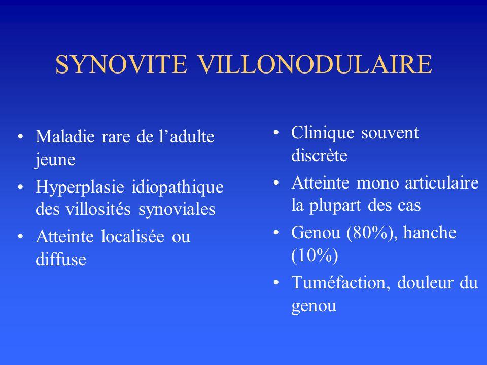 SYNOVITE VILLONODULAIRE •Maladie rare de l'adulte jeune •Hyperplasie idiopathique des villosités synoviales •Atteinte localisée ou diffuse •Clinique s